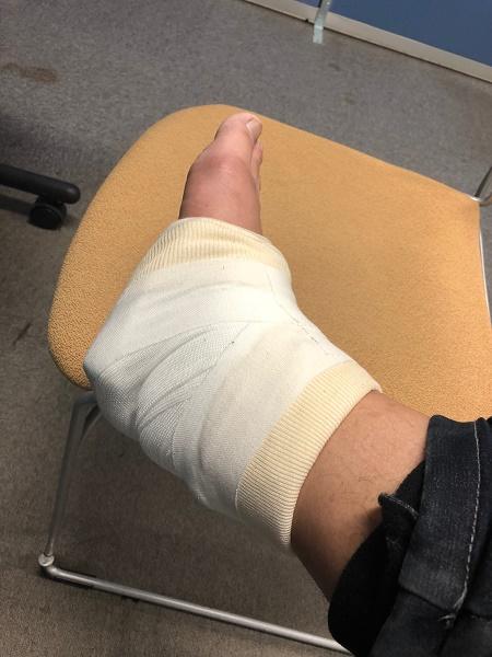 Achilles-tendon-injury